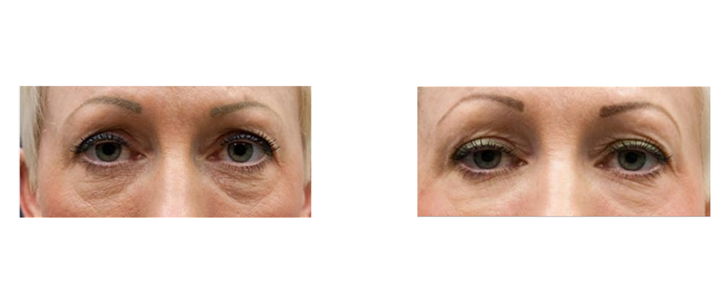 yeux-brouksy-group-carboxytherapie